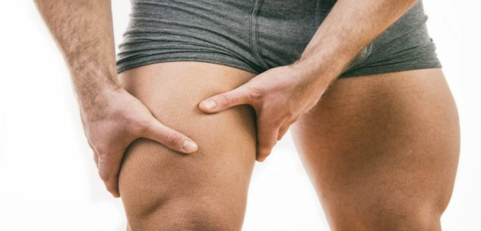 quadriceps contusion cork thigh epworth sports exercise